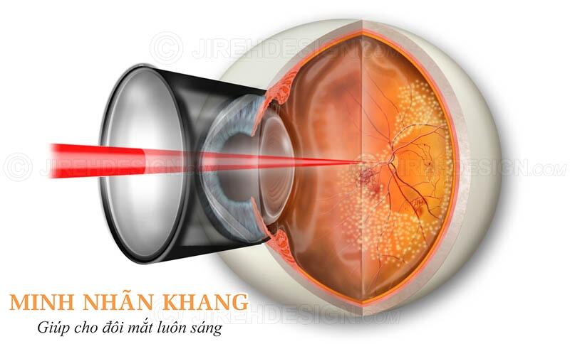 Chiếu laser để triệt tiêu các mạch máu bất thường khi bị thoái hóa điểm vàng thể ướt